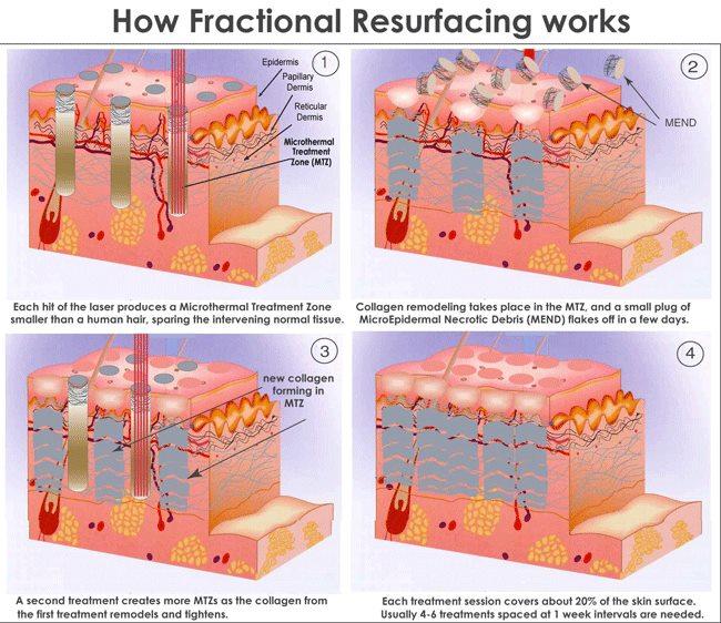 تفاوت RF فرکشنال را با لیزر فرکشنال CO2