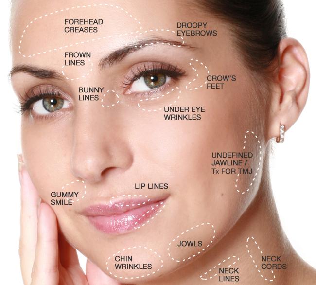 مزایای مختلف بوتاکس - botox
