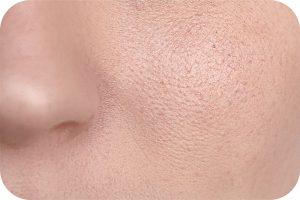 درمورد منافذ باز پوست بیشتر بدانیم