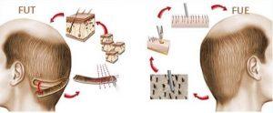 وش جراحی FUT می توان موها را کوتاه نکرد ولی در روش غیر جراحی FIT