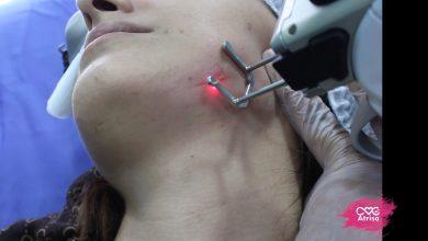 درمان اسکار با دستگاه جوانسازی یولیزر