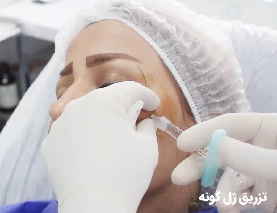 تزریق ژل به گونه و فرم دهی به چهره