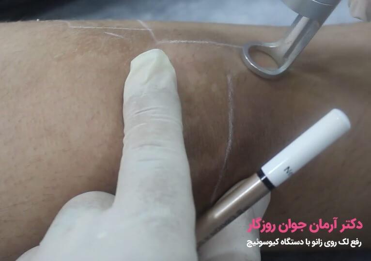 رفع تیرگی و لک زانو با استفاده از دستگاه کیوسوئیچ
