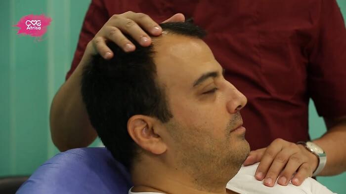 آیا پیوند موی طبیعی به بانک موی افراد بستگی دارد؟