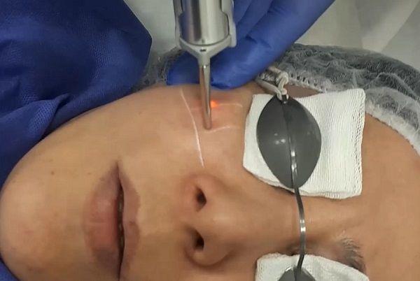درمان ضایعات عروقی با لیزر