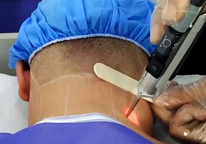 انجام لیزر موهای زائد آقایان در کلینیک آتریسا