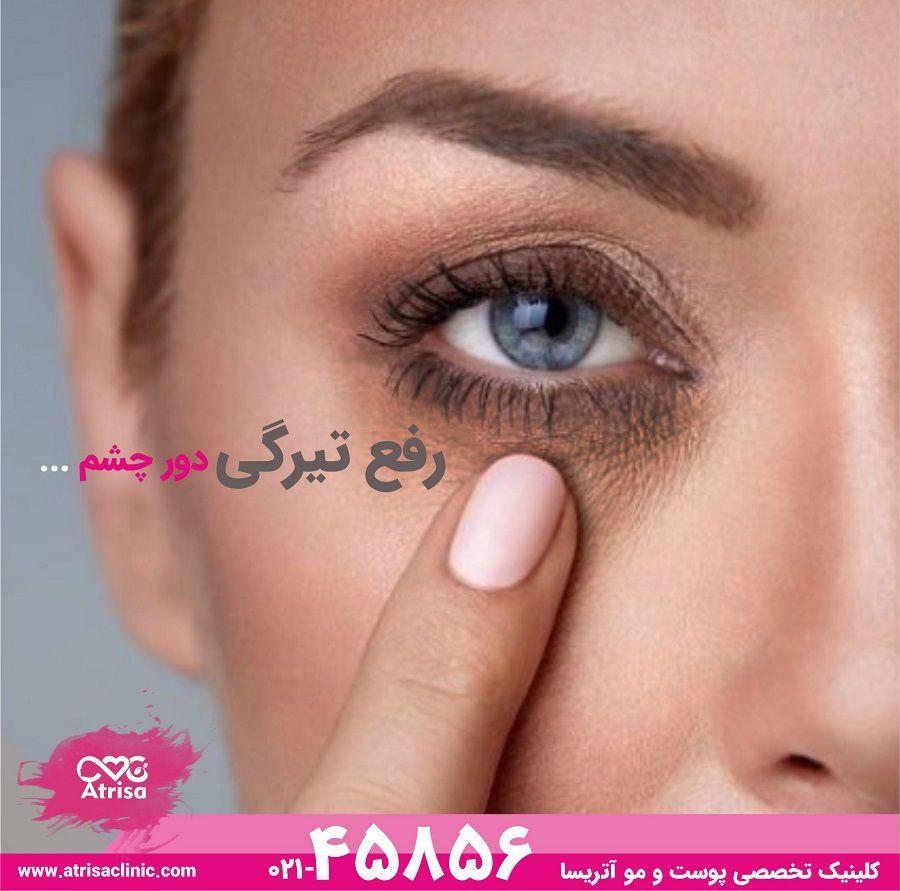 درمان سیاهی دور چشم (eye circle)