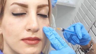 درمان گودی زیر چشم با مزوتراپی