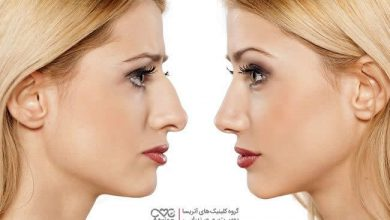 رینوپلاستی بینی چیست