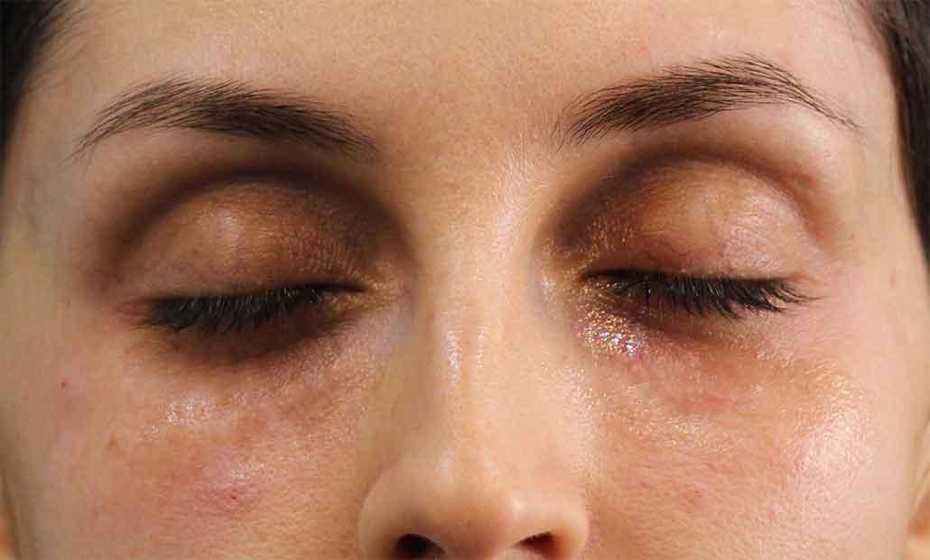 قبل تزریق ژل زیر چشم