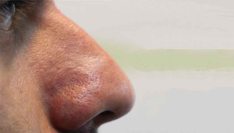 تصاویر قبل و بعد لیزر ضایعات عروقی