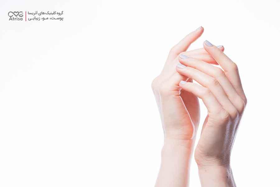راههای داشتن ناخن های سالم و زیبا