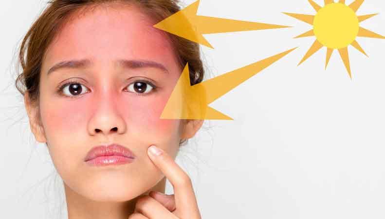مضرات نور خورشید بر پوست و مو