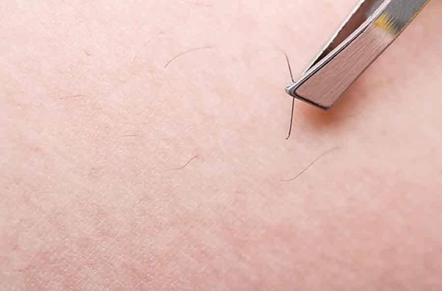 برای درمان موهای زیر پوستی چه باید کرد