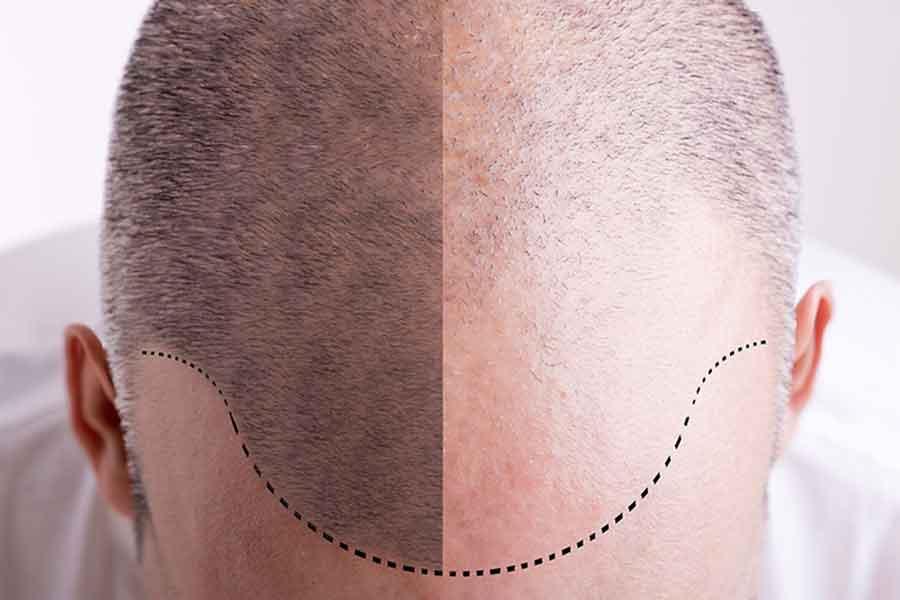 مراحل بعد از کاشت مو