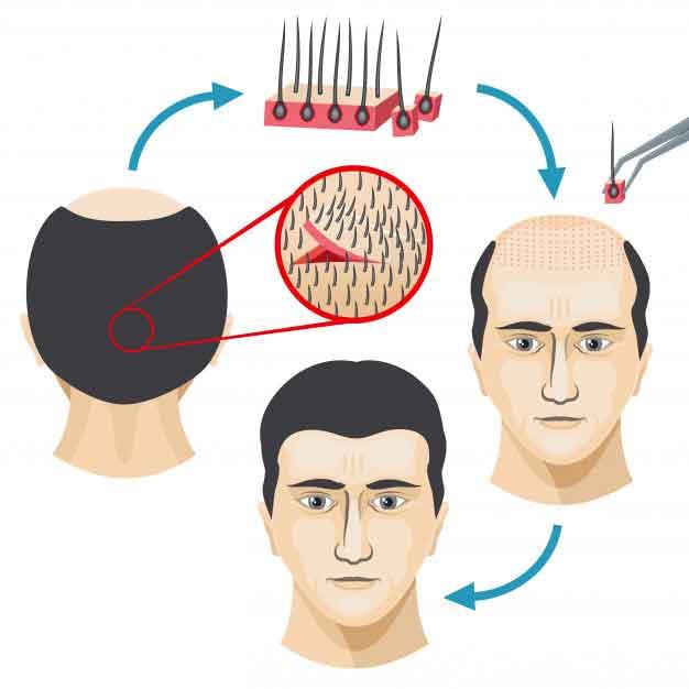 کاشت مو (کاشت موی طبیعی)