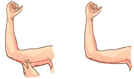 لیفت بازو یا براکیوپلاستی