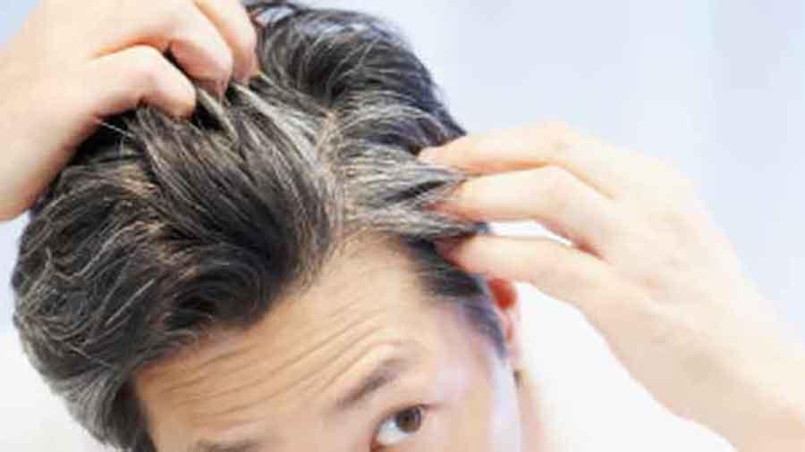 علت سفید شدن موها