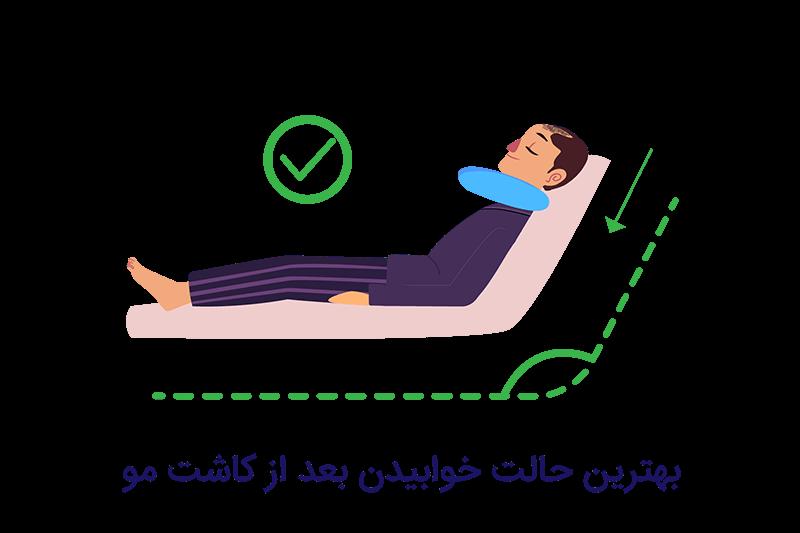 خوابیدن بعد از کاشت مو