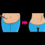 جراحی ابدومینوپلاستی