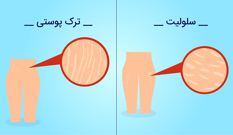 تفاوت سلولیت با ترک های پوستی