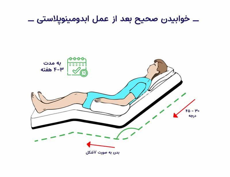 نحوه خوابیدن بعد از ابدومینوپلاستی