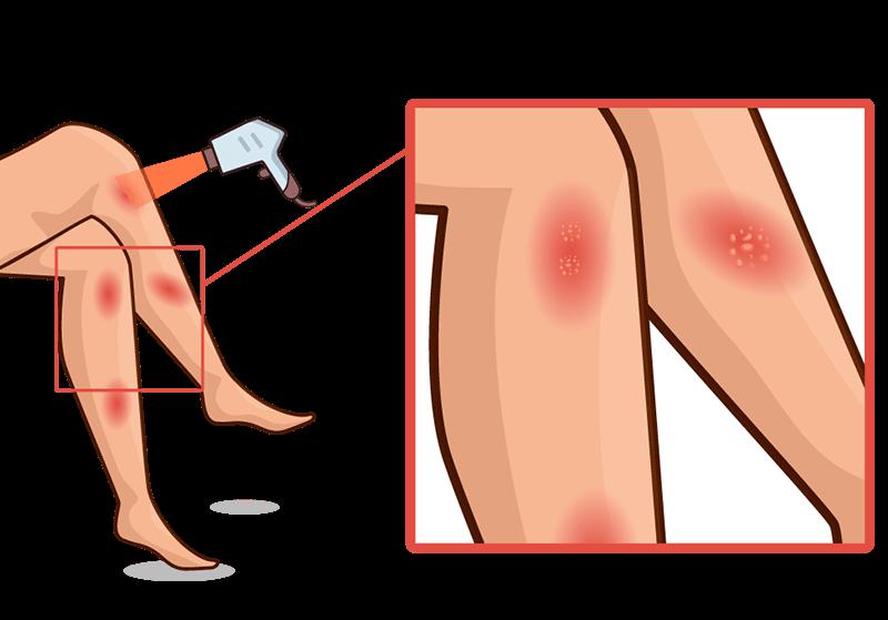 عوارض لیزر موهای زائد و درمان سوختگی با لیزر