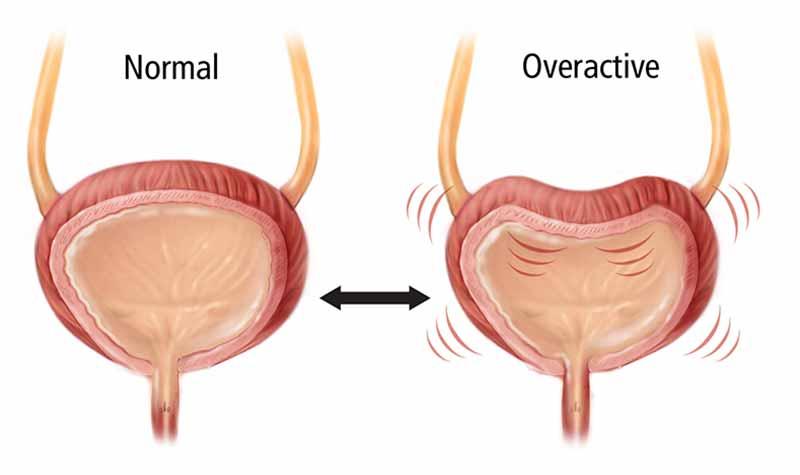 درمان بیش فعالی مثانه با تزریق بوتاکس