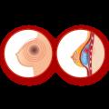 عوارض پروتز سینه