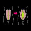 بارداری بعد از عمل ابدومينوپلاستی