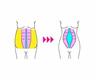 بارداری بعد از لیپوماتیک