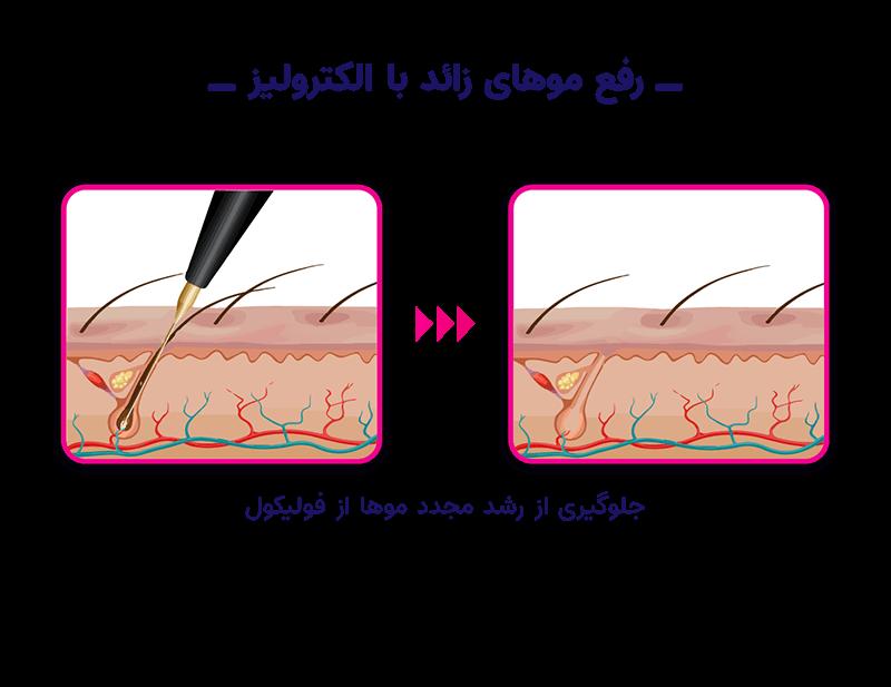 رفع موهای زائد با لیزر بهتر است یا الکترولیز