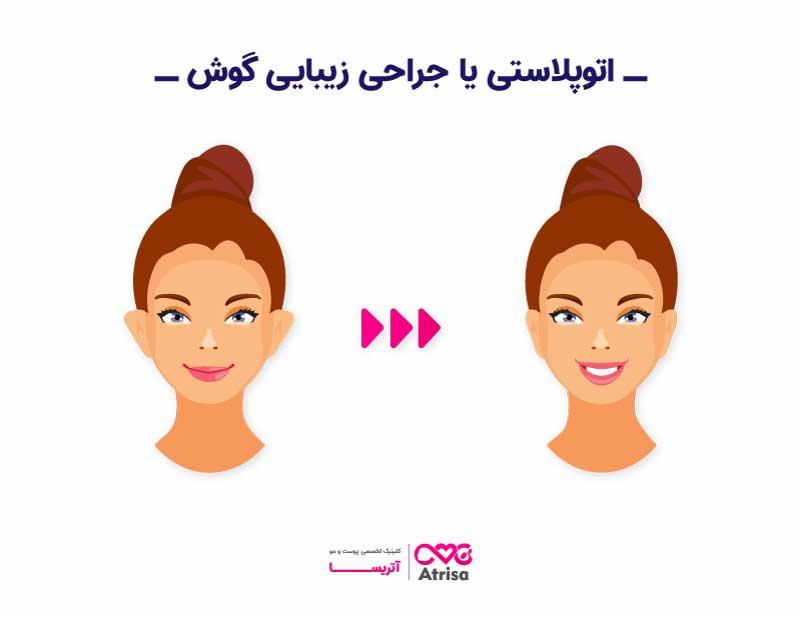 اتوپلاستی یا جراحی زیبایی گوش