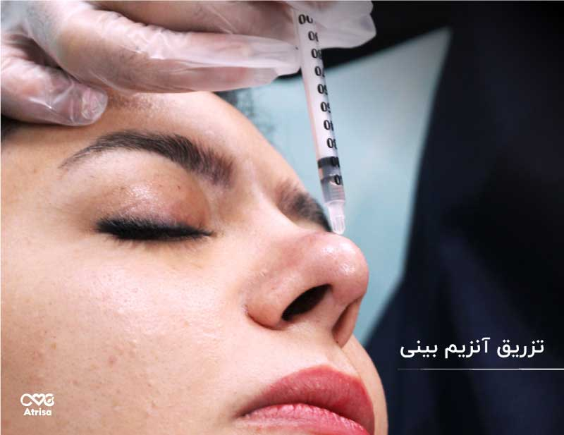 اصلاح فرم بینی بدون جراحی