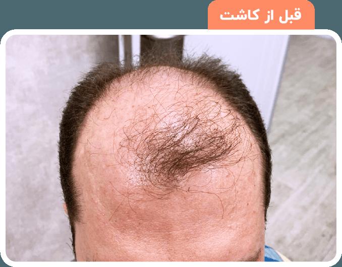 تصاویر قبل و بعد کاشت مو